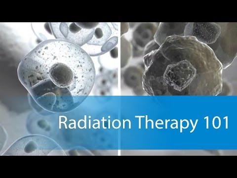 What to Expect: Radiation Therapy 101