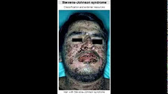 Drugs Side Effect - Benzodiazepines, Carbamazepine (Stevens Johnson Syndrome)