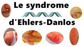 Le Syndrome d'Ehlers Danlos - Les symptomes