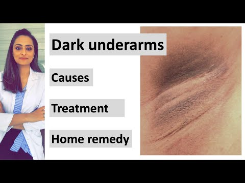 How to get rid of Dark underarms | causes|  treatment| home remedy| Dermatologist | Dr. Aanchal