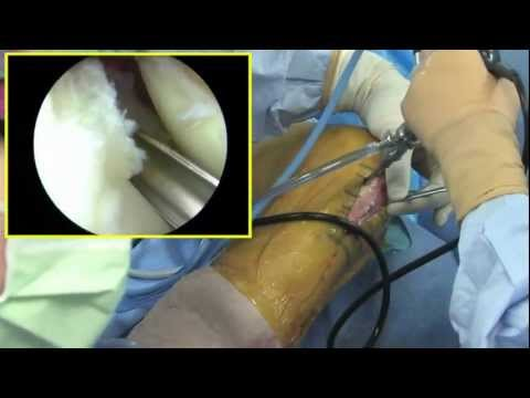 ACL with Lateral Meniscus  - Andrews Sports Medicine & Orthopaedic Center
