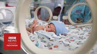 Bayi terkecil di Asia: Lahir dengan berat 375 gram di usia 25 minggu