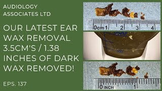 3.5CM/1.38 INCHES OF DARK EAR WAX REMOVED - EP 137