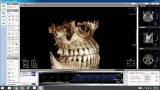 How to Segment the Maxillary Sinus in LED Dental's Xelis 3D Imaging Software
