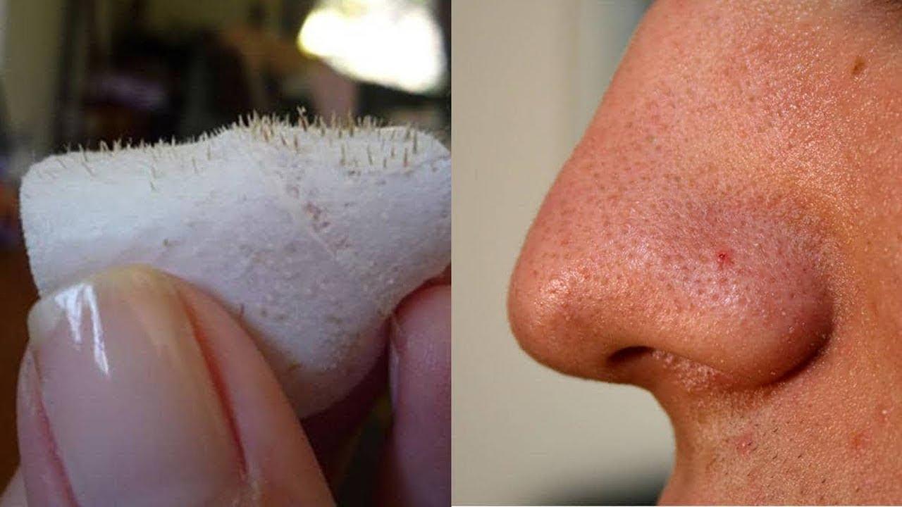 طريقة سريعة وفعالة لإزالة الرؤوس السوداء من الوجه خلال دقائق فقط !!