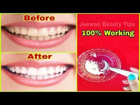 Teeth Whitening At Home In Hindi द त क प ल पन