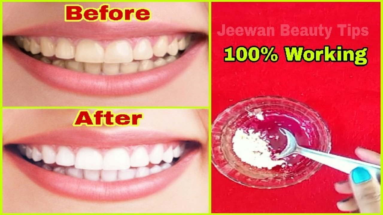 How To Whiten Yellow Teeth Naturally Teeth Whitening At Home In
