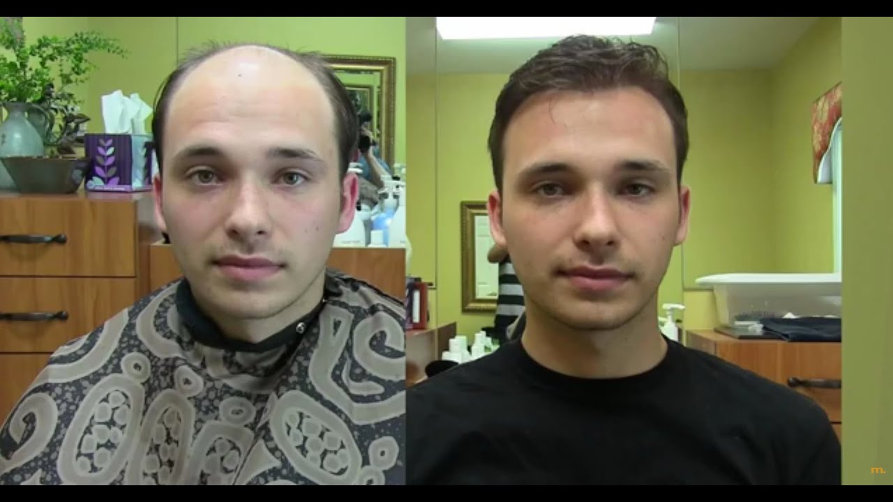 Non Surgical Hair Replacement London - Mens Wigs, Mens ...