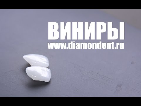 Виды зубных протезов - ru-