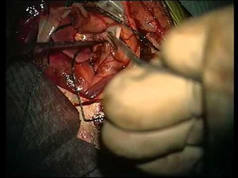Frontal lobe glioblastoma  multiforme