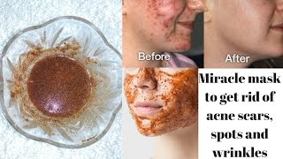 Magical Face Mask To Get Rid Of Spots, Acne scars, Wrinkles & Uneven Skin Tone
