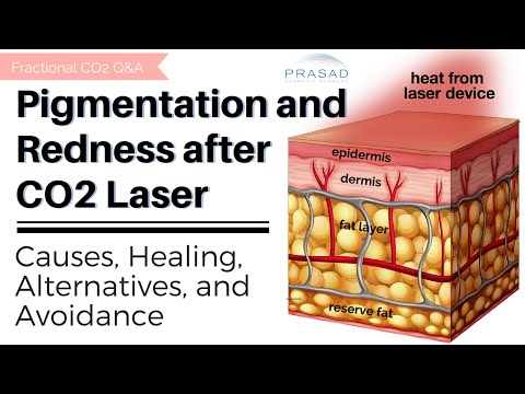 Skin Discoloration after Fractional CO2 Laser for Acne Scars: Risks, Alternatives, and Treatments