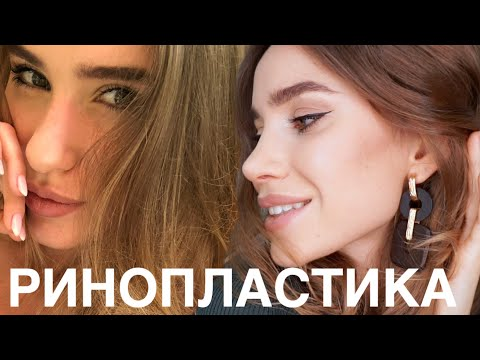 ПРОЩАЙ БОЛЬШОЙ НОС / Ринопластика / $ ЦЕНА на НОС, Мой Пластический Хирург