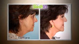 Seattle Swiftlift Commercial - Facelift Procedure With Less Downtime by Dr. Craig Jonov Thumbnail