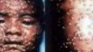 エボラ出血熱に感染したアメリカ人が完治した?真相は・・・日本もそろそろ危険?感染経路が心配だ