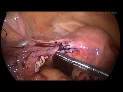 Essure Reversal Technique Video