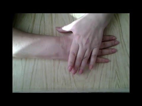 Перелом лучевой кости руки в типичном месте, со смещением