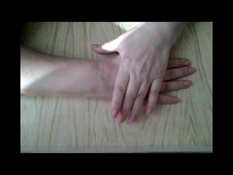 Разработка кисти руки после перелома видео