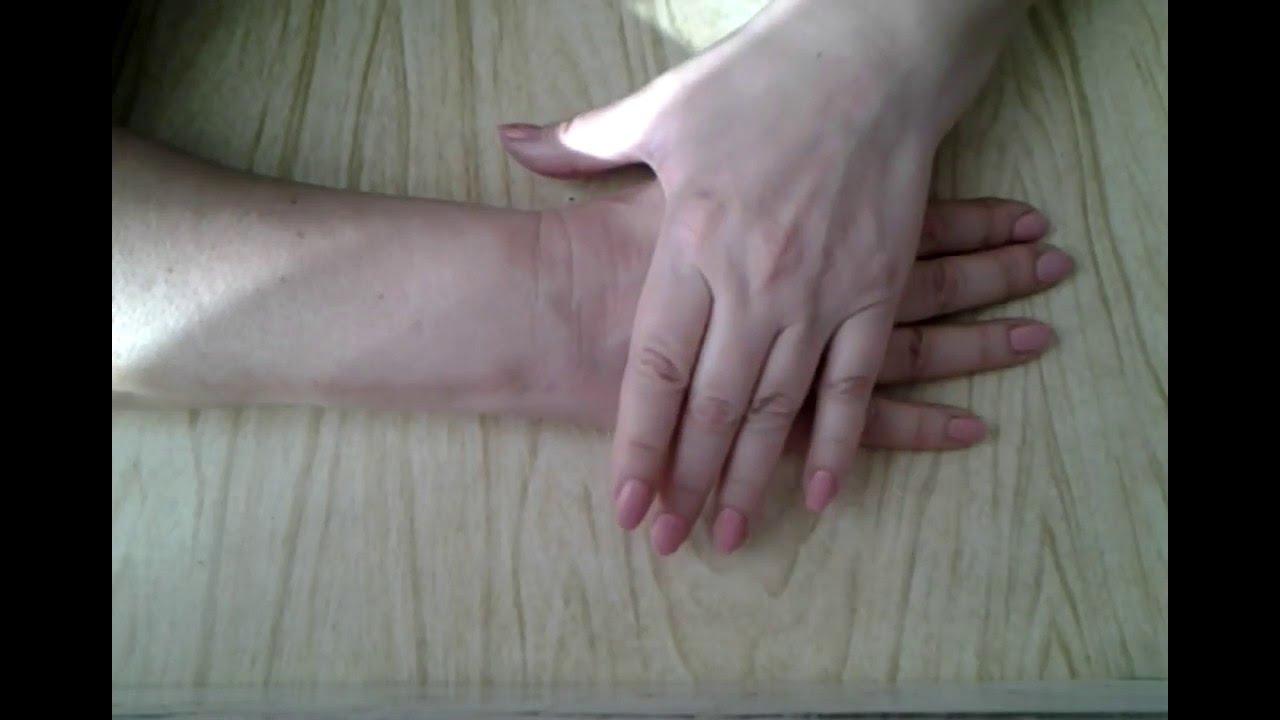 Разработка сустава пальца после перелома выпадение волос на суставе у собаки