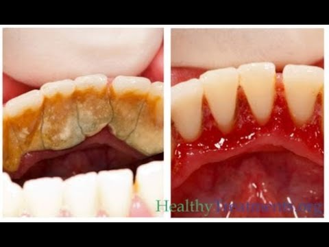 Remove Dental Plaque Naturally In 5 Minute Without Going To The Dentist | 100% Works