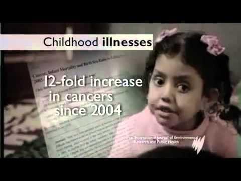 Iraq: US-War Crimes on children using Depleted Uranium