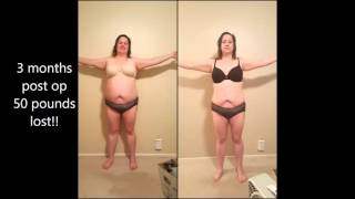 And After Pics Months Post Op Gastric Byp Rny