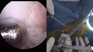 Live stream - TPLO with arthroscopy in a dog for cruciate ligament rupture