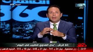 القاهرة 360  60 قرش .. بدل العودى للطبيب في  اليوم