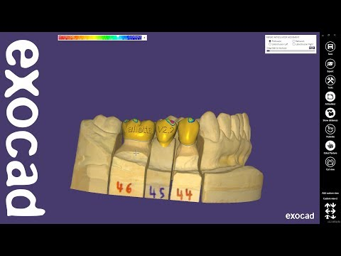 exocad Quick Guide: New features in DentalCAD 2.2 Valletta
