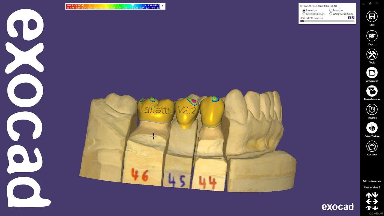 exocad Quick Guide: New features in DentalCAD 2 2 Valletta