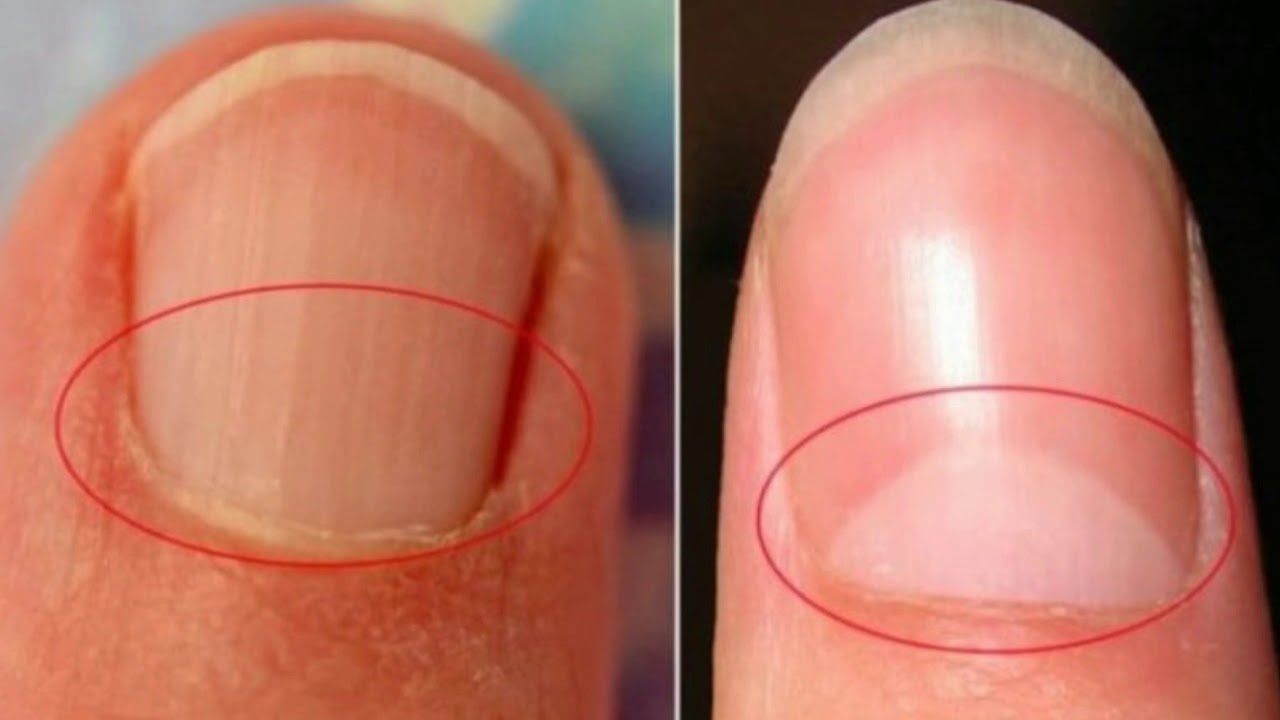 Here's What The Little Half Moon Under Our Fingernails Means