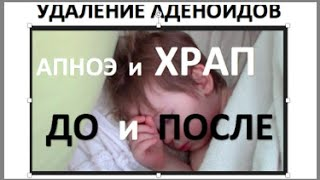 видео Аденоиды у ребенка 3 года: как лечить