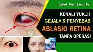 Ablasio Retina-Panduan Informasi Pasien (Patient Information Clip).