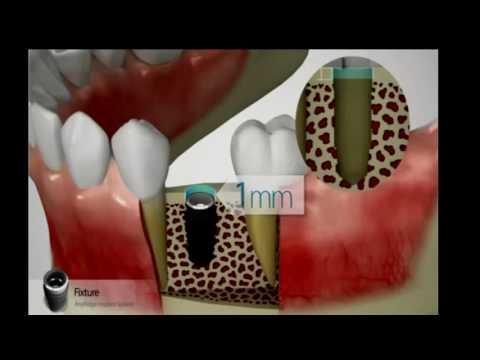 Cấy ghép Implant - Nha khoa tp Vinh - Nha khoa Răng Xinh