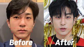 남자 코 성형 & 안면비대칭교정 볼 지방흡입 수…
