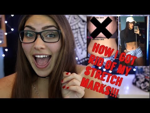 How I Got Rid Of My Stretch Marks Completely As A Teenager!