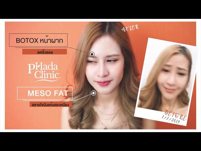 PINEMARKETING x PHADA CLINIC : Botox