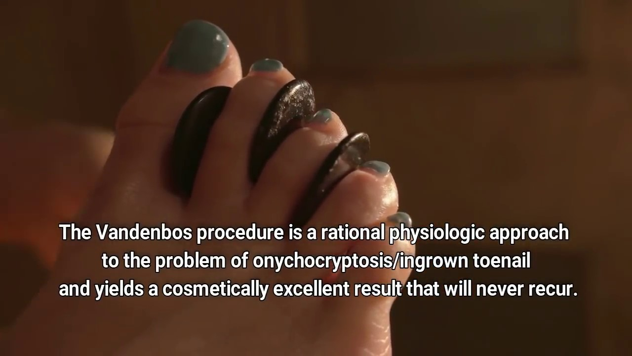 Vandenbos Procedure For Ingrown Nails Youtube