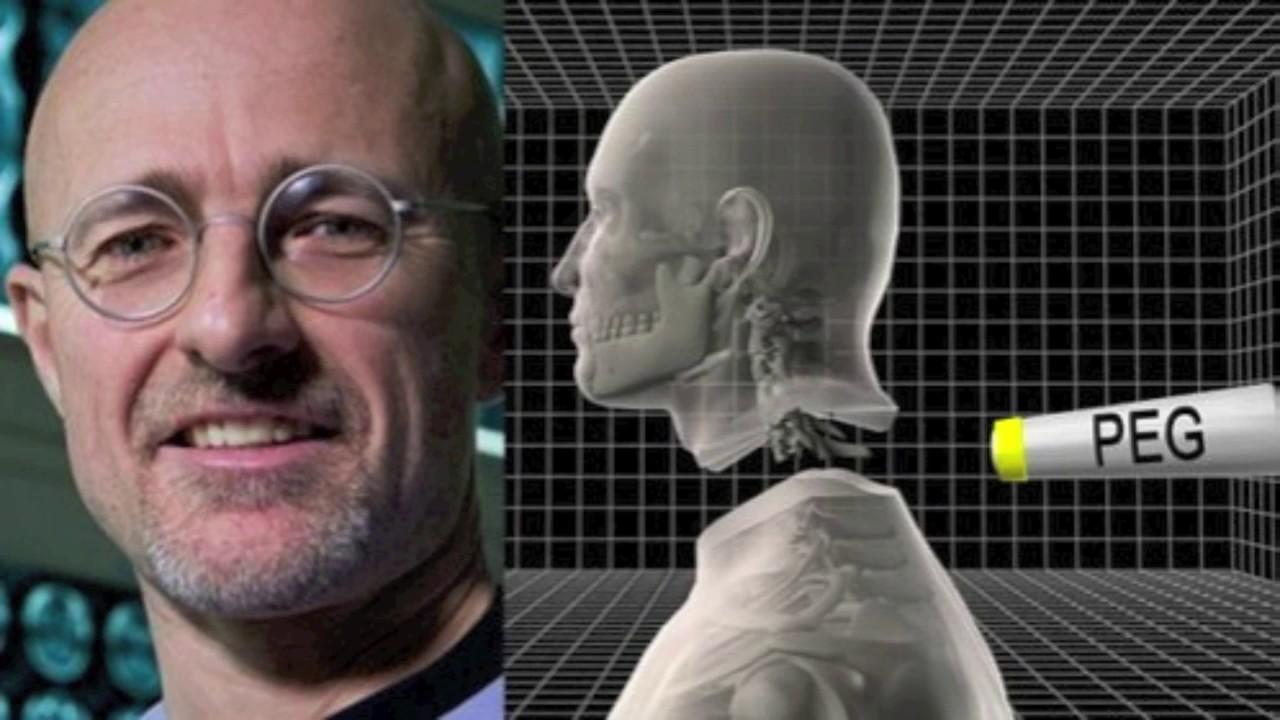 The First Human Head Transplantation In 2017 -brostv