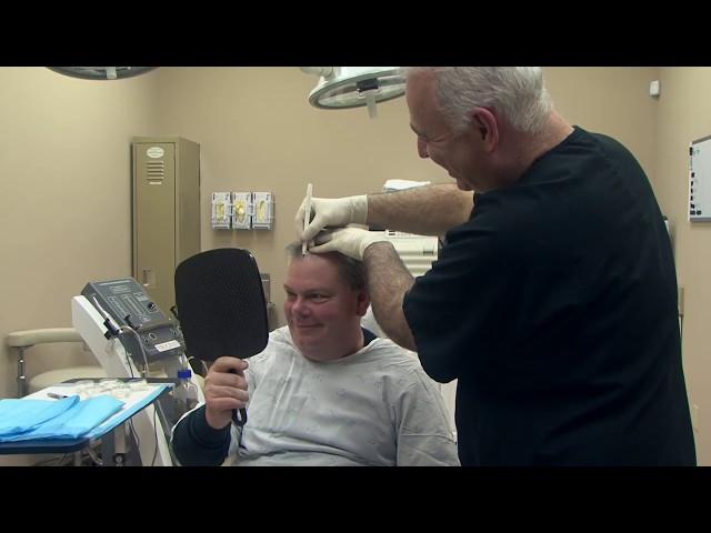 Dr  Vories on the Cost of Hair Transplant