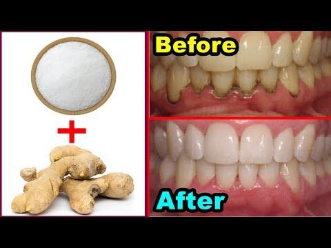 Get whiten Teeth at home in 2 minutes ! Teeth Whitening Remedy ! WITH Ginger And Salt