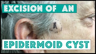 Repeat youtube video Dr Pimple Popper: Cyst Removed on the Right Temple