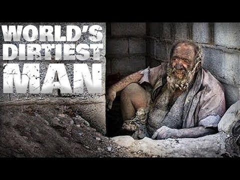 World's Dirtiest Man - He Has Not Bathed in Over 60 years