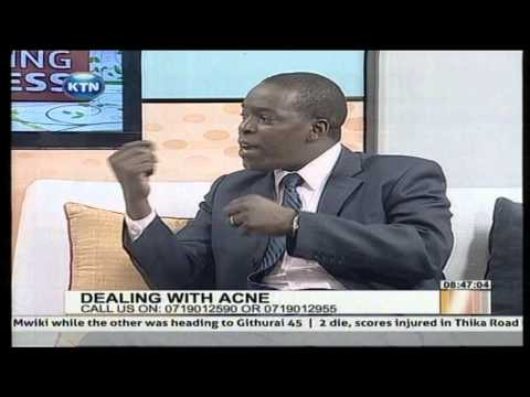 Morning Express Discussion: Dealing with acne