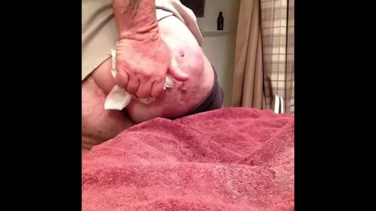 Hidradenitis suppurativa draining cyst boils pus