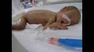 Prematüre bebek Fatma 25 hafta 550 gram 29 cm..