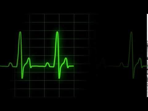 ECG Heartrate Graph