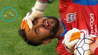 Top 15 Football Players Lost Teeth During Match | Horror Football Fouls and Injury