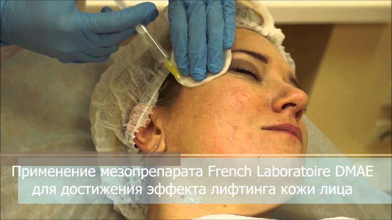 Мезотерапия filorga (франция). Экспертная клиника «алодерм» одна из немногих в москве, где наряду с классическими методами лечения.