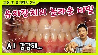 치아교정 유지장치의 숨겨진 비밀
